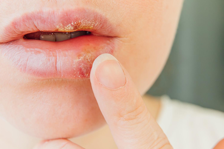 ajakherpesz bőrgyulladás
