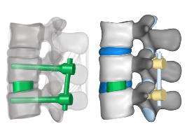 Az implantátumok digitalizált 3D modelljei virtuális műtét során 3D ágyéki gerincmodellekbe kerültek beültetésre