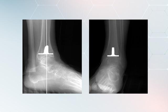 A 3D tervezés alapján sípcsonti komponens várható helyzete röntgenképen
