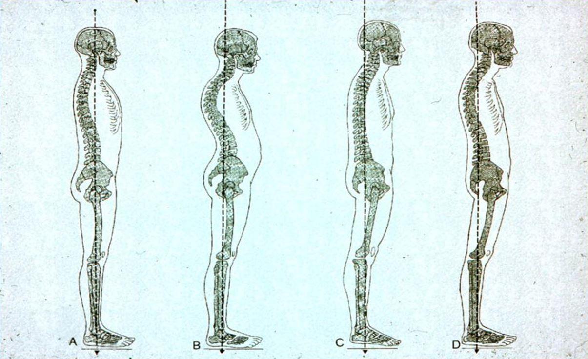 Helyes testtartást bemutató ábra.